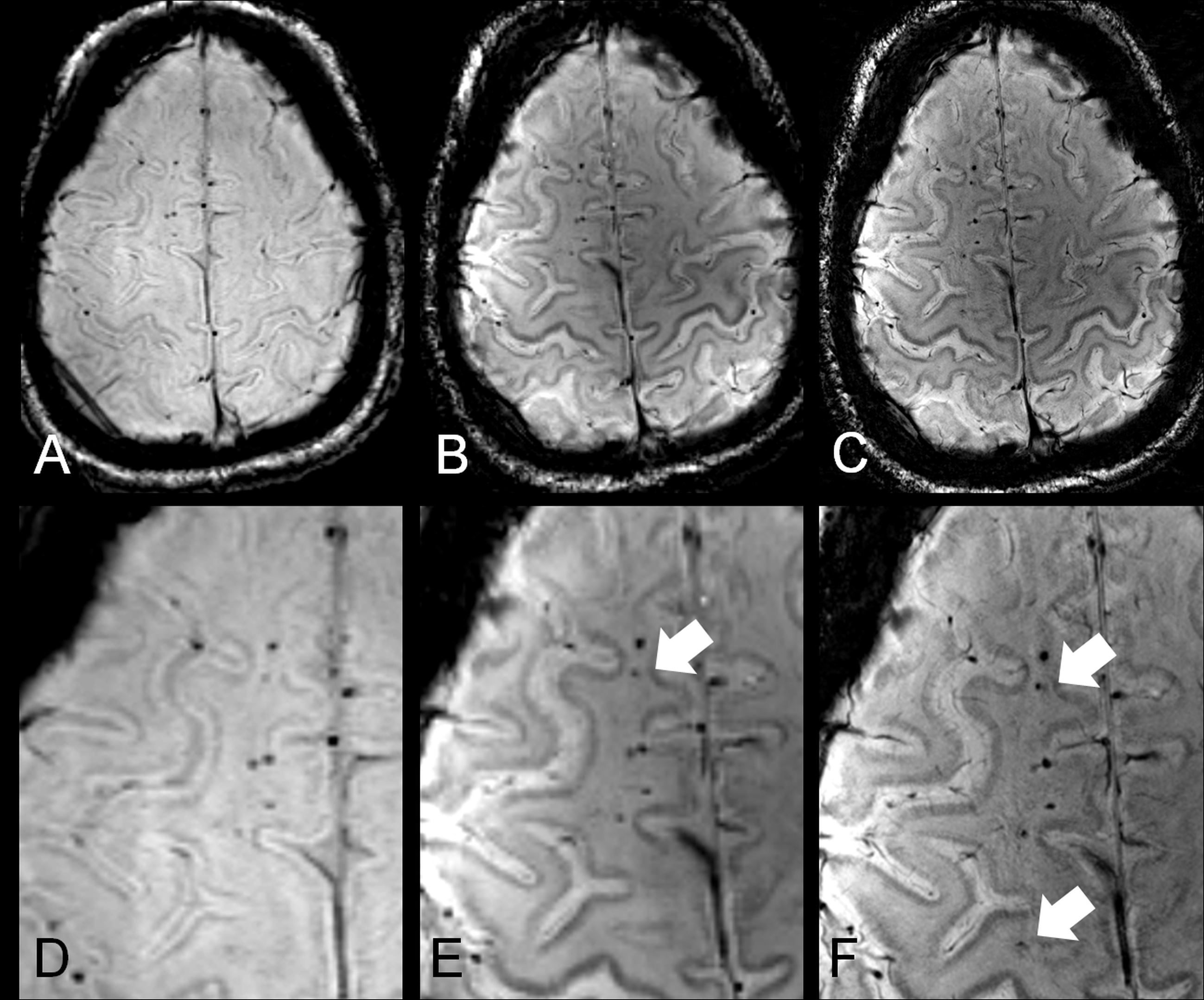 Fantastisch Anatomie Gehirn Mri Bilder - Anatomie Von Menschlichen ...